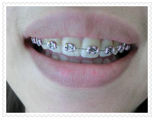 台南, 牙齒矯正, 牙醫診所, 牙科矯正, 戴牙套, 裝牙套, 台南牙齒矯正, 牙科矯正費用, 台南裝牙套, 牙齒矯正權威, 牙齒矯正專科, 台南牙齒矯正診所推薦, 台南裝牙套診所推薦, 台南左營區牙醫矯正, 牙醫診所, 台南牙醫權威, 台南牙科醫生,台南牙齒矯正推薦ptt,台南裝牙套推薦ptt,台南牙齒矯正推薦ptt,台南裝牙套,台南牙齒矯正價格查詢,牙齒矯正醫生推薦
