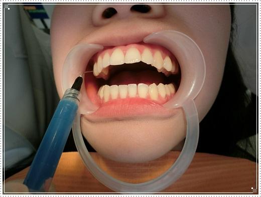 台南, 牙齒矯正, 牙醫診所, 牙科矯正, 戴牙套, 裝牙套, 台南牙齒矯正, 牙科矯正費用, 台南裝牙套, 牙齒矯正權威, 牙齒矯正專科, 台南牙齒矯正診所推薦, 台南裝牙套診所推薦, 台南左營區牙醫矯正, 牙醫診所, 台南牙醫權威, 台南牙科醫生,台南牙齒矯正推薦ptt,台南裝牙套推薦ptt,台南牙齒矯正推薦ptt,台南裝牙套,台南牙齒矯正牙醫師,台南牙齒矯正費用分享
